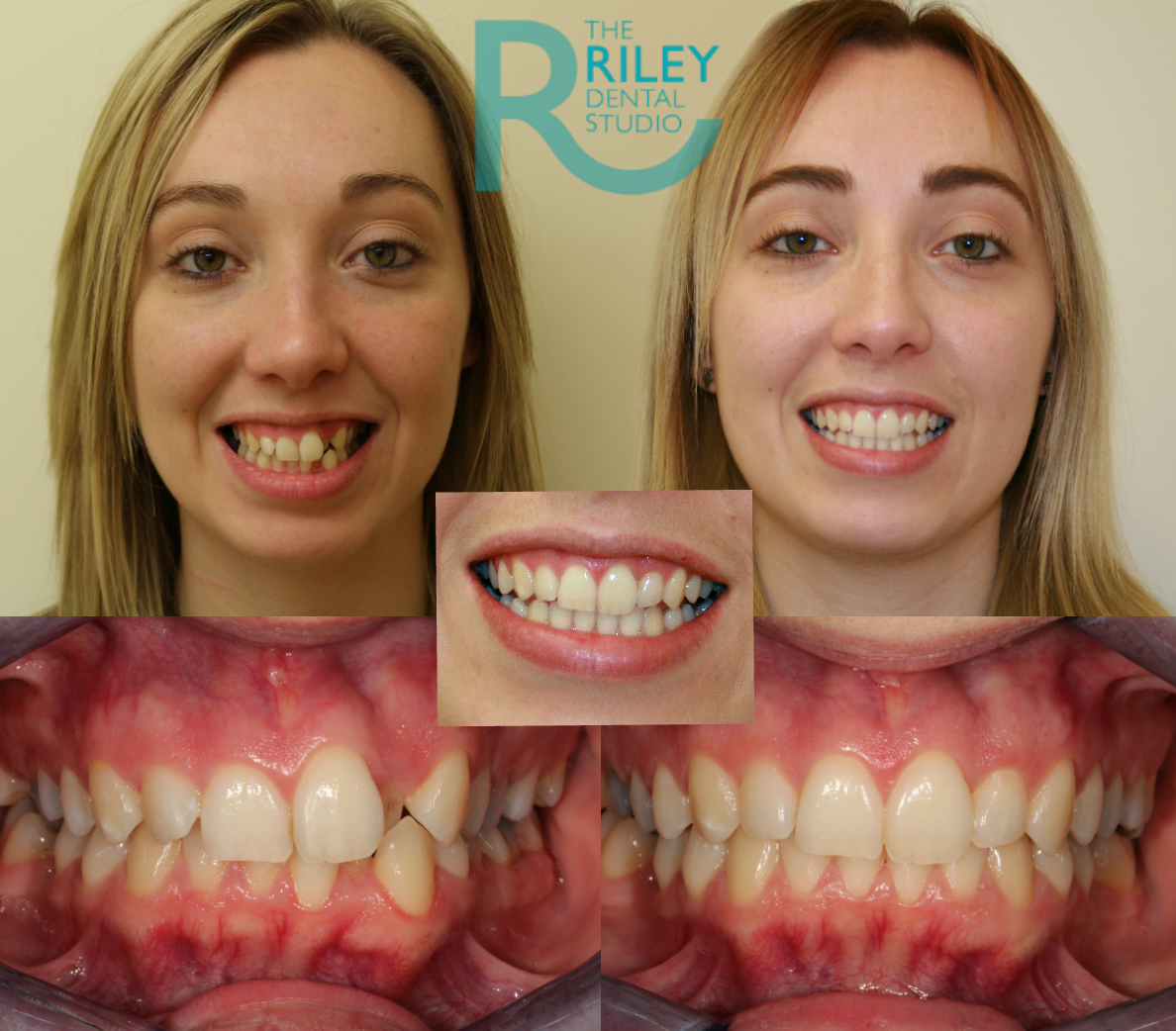 invisalign stoke on trent before and after results 2