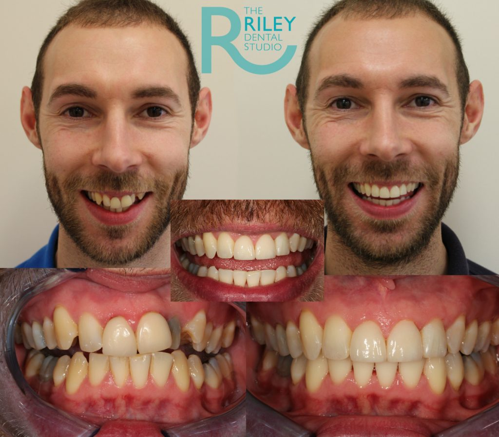 invisalign stoke on trent before and after results