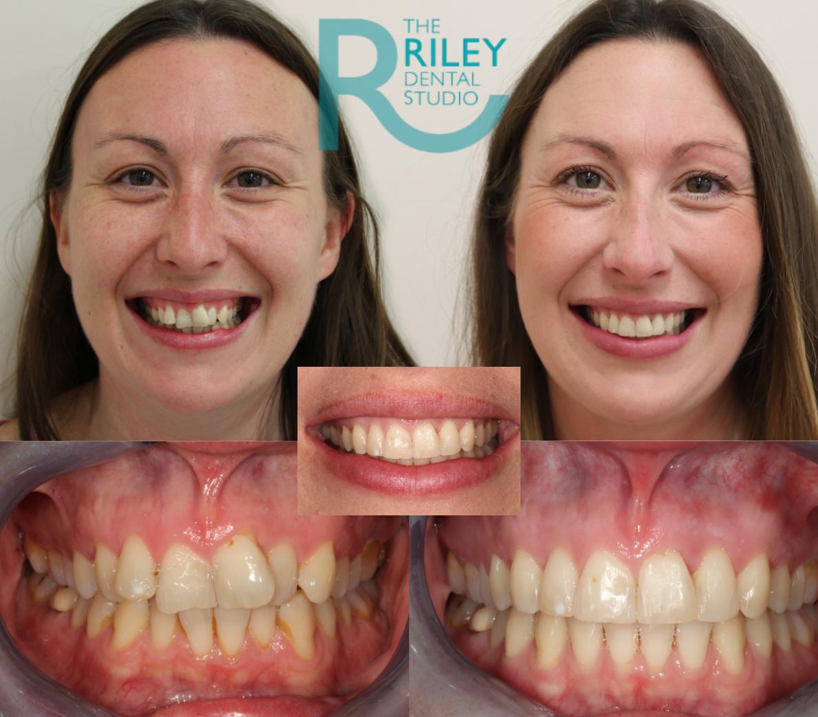 invisalign treatment results